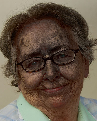 photo of a Burnt Faced Grandma