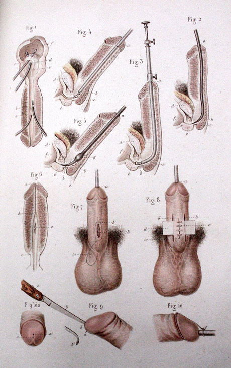 Vintage Medical Diagrams | Made in England