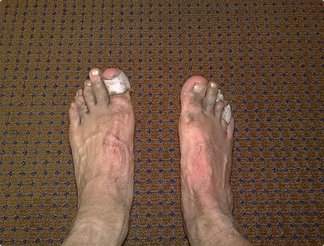 Cookies broken feet